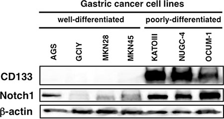 Cleaved Notch1 and CD133 protein expression in human gastric cancer cell lines.