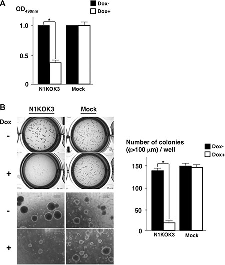 Silencing Notch1 reduced cell proliferation and anchorage independent cell growth.