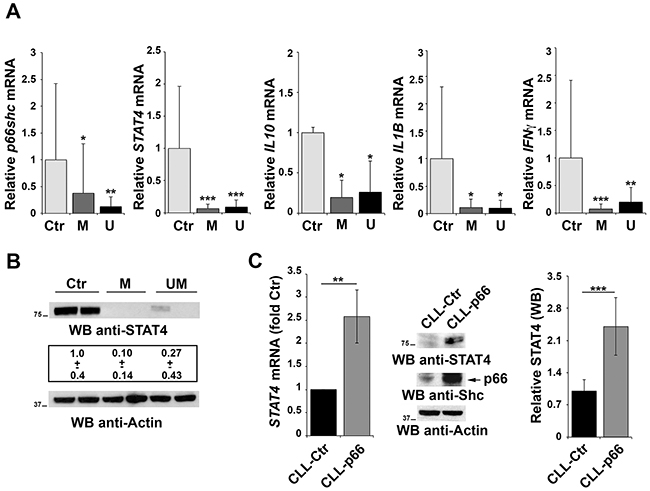 Impaired STAT4 expression in primary CLL B cells.