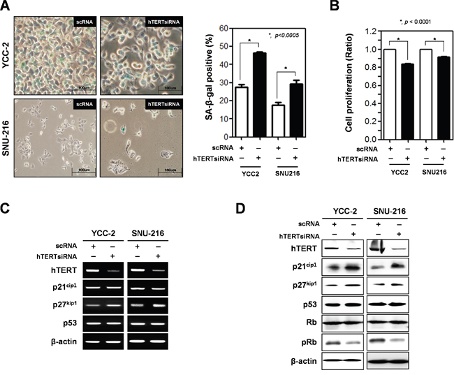 Ablation of hTERT altered the cell proliferation and cellular senescence of gastric cancer cells.