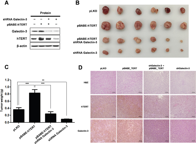 Knockdown of galectin-3 reduces tumor burden in gastric cancer cell xenografted mice, effect that is reversed by overexpression of hTERT.