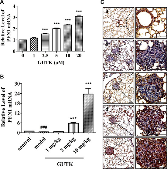 GUTK induces increases in the mRNA and protein expression levels of PFN1 in vitro and in vivo.
