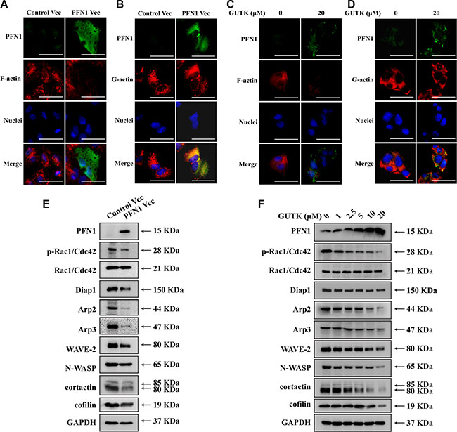 GUTK and PFN1 regulate key proteins involved in cell motility and metastasis.