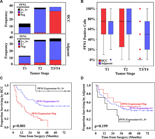 PFN1 expression levels and fraction of PFN1 positive cells in advanced HCC predict metastasis-free survival.