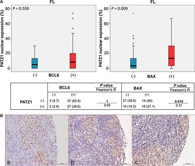 PATZ1, BCL6 and BAX expression and correlations in FLs.