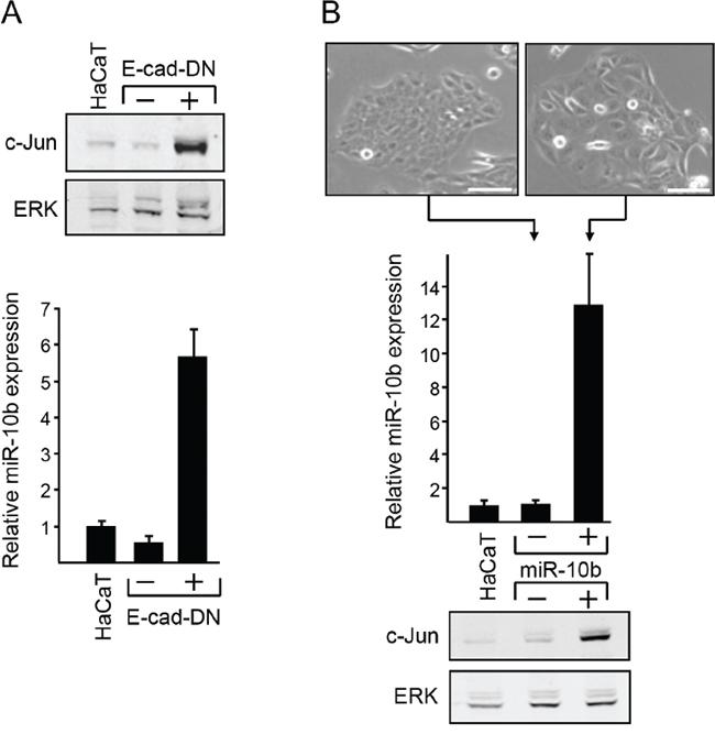 Functional link between E-cadherin, c-Jun and miR10b.