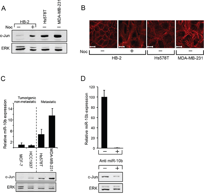 miR10b regulates the expression of c-Jun in breast cancer cells.