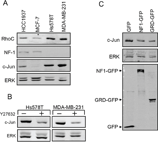 Analysis of RhoC and NF-1 in metastatic breast cancer cells.