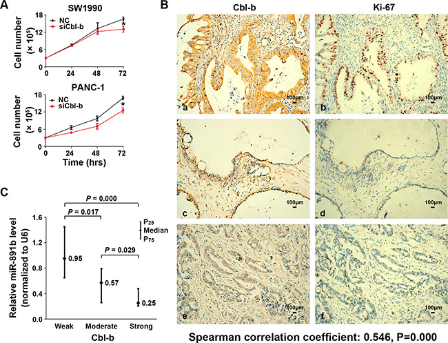 The expression of Cbl-b was associated with the proliferative capacity of PDAC cells.