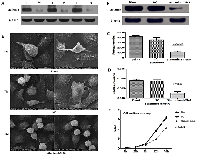 Efficacy of stathmin-shRNA in lung adenocarcinoma cells.