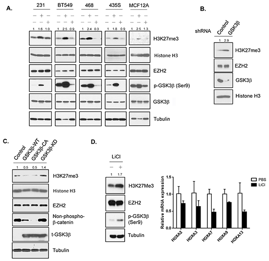 GSK3β downregulates H3K27 trimethylation.