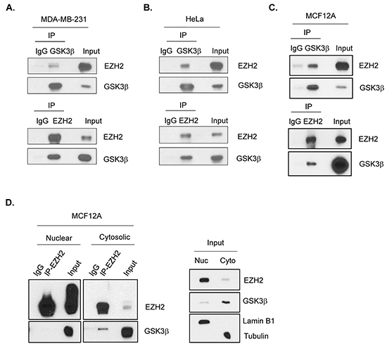 GSK3β interacts with EZH2.