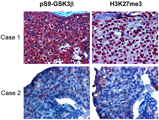 H3K27me3 is correlated with pSer9-GSK3β and low expression of both in tissues associates with better survival in human breast cancers.