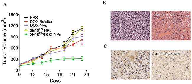3E10EN/DOX-NPs have a significant effect on tumors.