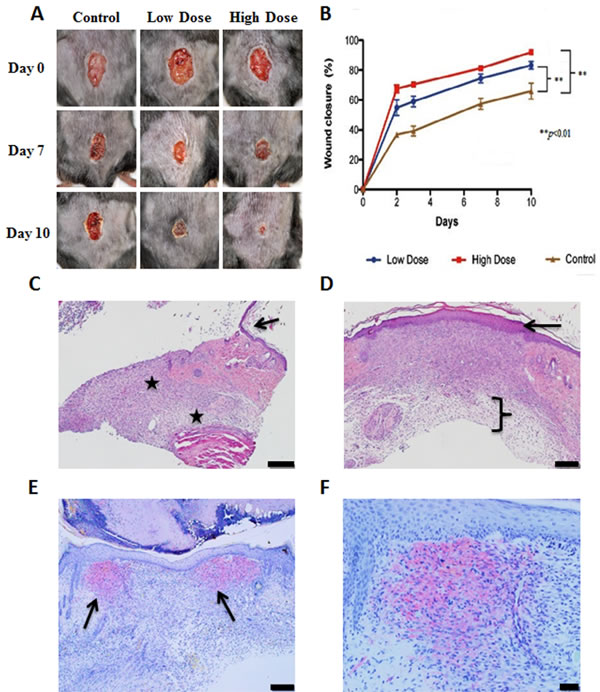 Acceleration of healing of skin wounds by topical application of GHRH agonist, MR-409.