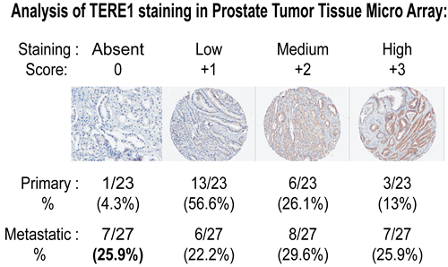 Reduced TERE1 staining in prostate carcinoma tissue micro-array.