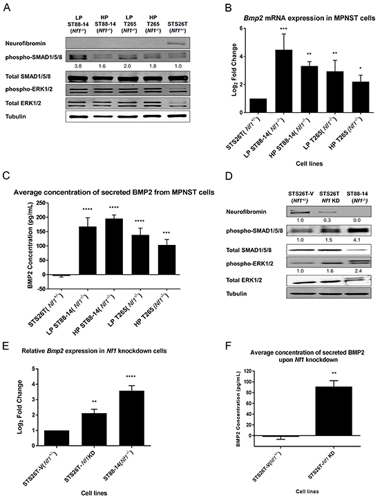 BMP2 is overexpressed in NF1-null MPNST cell lines.