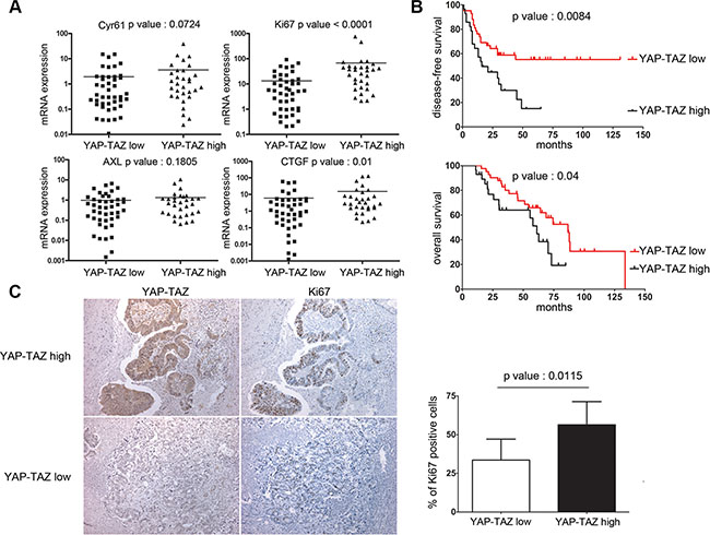 YAP/TAZ levels in liver metastases are highly correlated with Ki-67 and tumor relapse in colon cancer patients.