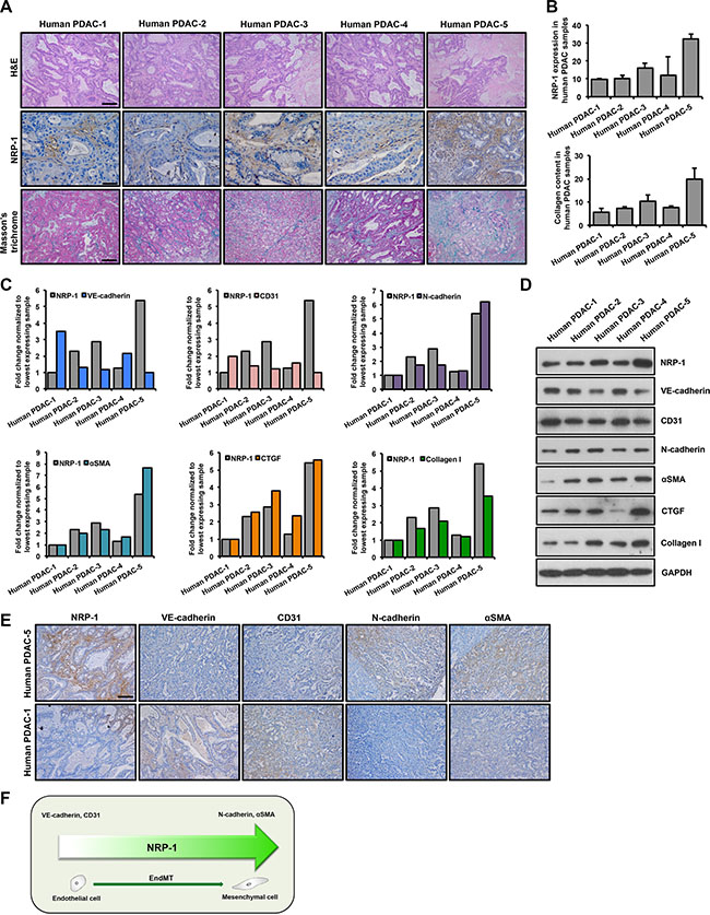 NRP-1 levels positively correlate with EndMT and fibrosis markers in human PDAC xenografts.