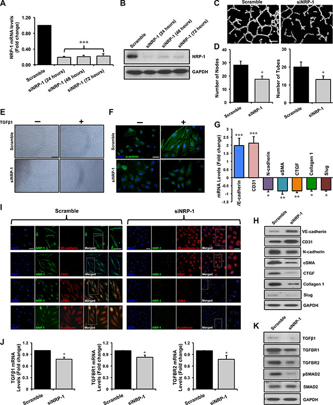 Loss of NRP-1 inhibits TGFβ1- induced EndMT in HUVECs.