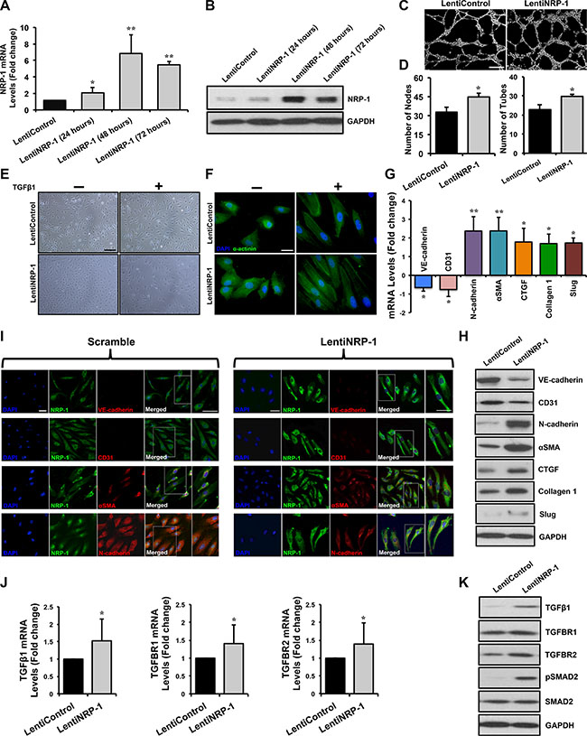 Lentivirus-mediated NRP-1 overexpression exacerbates TGFβ1-induced EndMT in HUVECs.