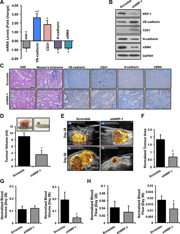 Loss of NRP-1 inhibits EndMT and fibrosis in vivo and results in reduced tumor growth.