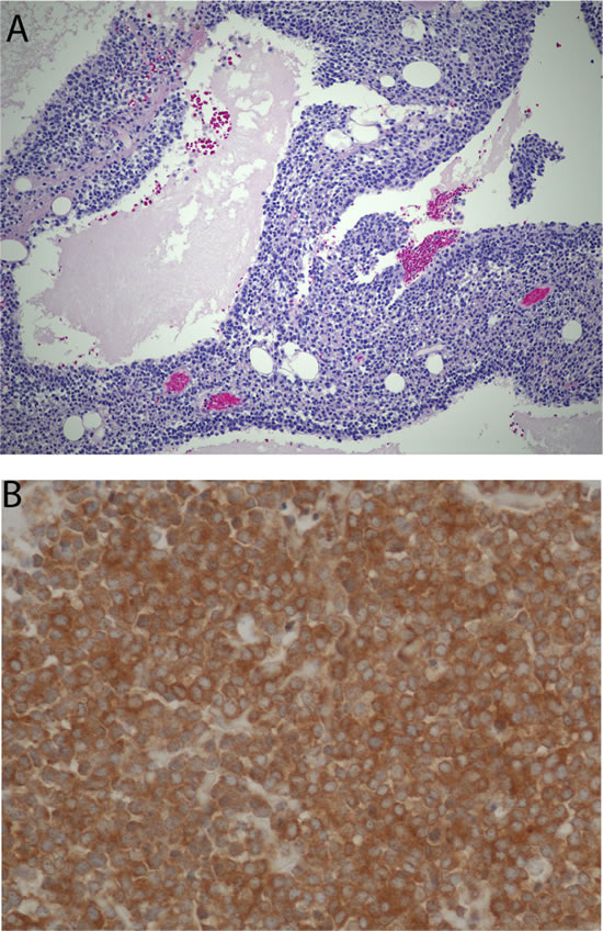 Histomorphologic appearance of a retroperitoneal tumor that could not be accurately classified by pathologists despite extensive work-up and opinions of multiple nationally-recognized experts (