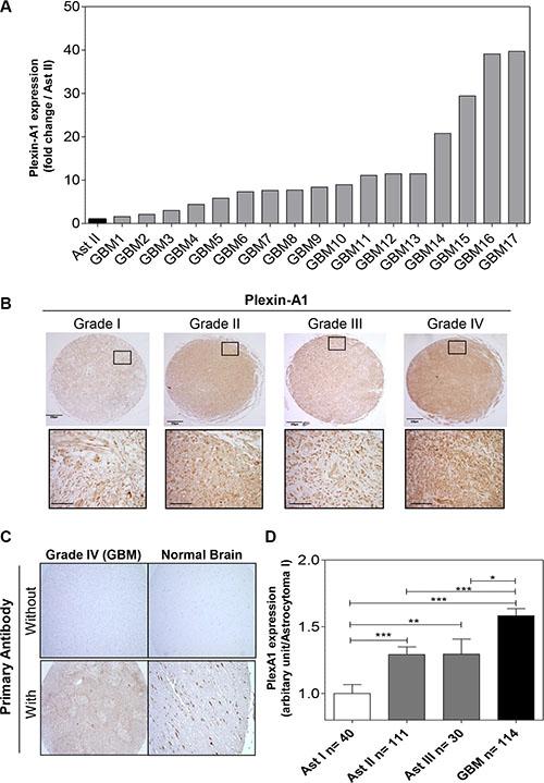 PlexA1 expression correlates with glioma severity.