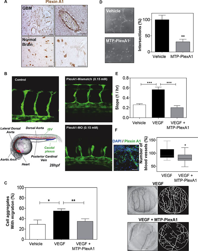 MTP-PlexA1 inhibits developmental and tumor-specific PlexA1 pro-angiogenic role.