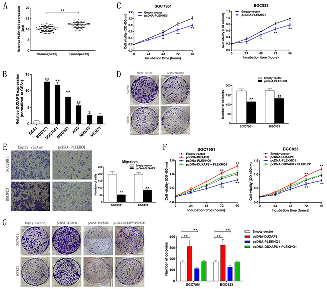 Down-regulation of PLEKHO1 promotes GC cell proliferation and is involved in the oncogene function of DUXAP8.
