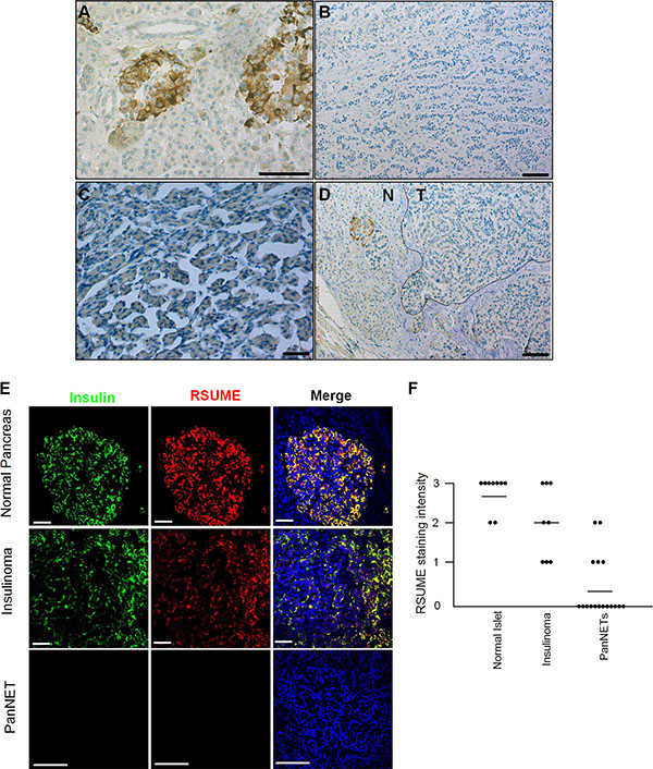 RSUME expression is decreased in human pancreatic neuroendocrine tumors.