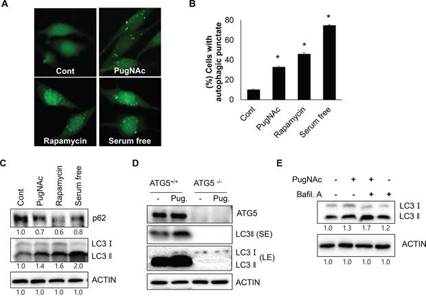 Treatment with PugNAc, an OGA inhibitor activates autophagy.