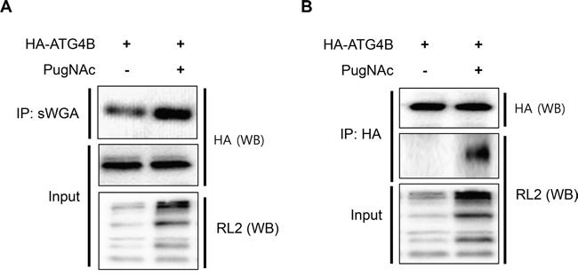 ATG4B is O-GlcNAcylated in PugNAc-treated cells.