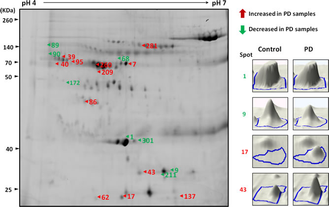A representative composite two-dimensional difference gel electrophoresis of PD patients and healthy controls.