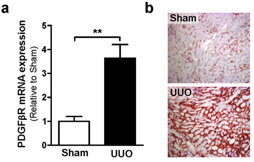 UUO increases PDGFßR expression on mRNA (a) and protein (b) expression level.