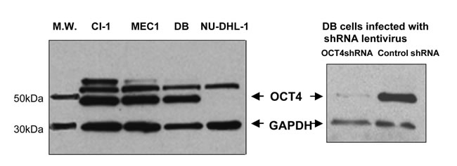 Western blot detection of OCT4 in leukemia/lymphoma cell lines expressing MIAT with different abundance.