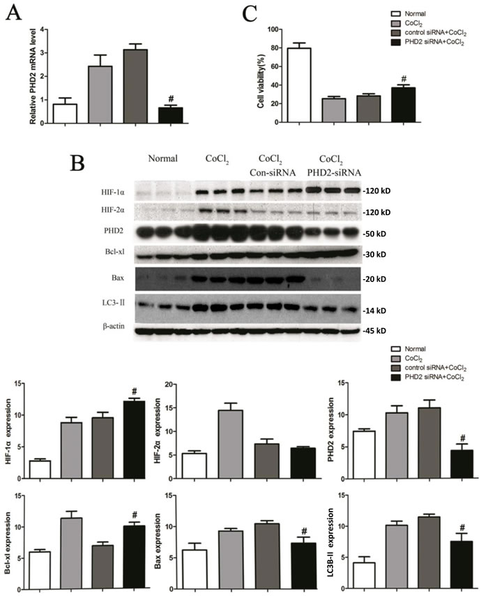 PHD2 silencing in HK-2 cells attenuates apoptosis and autophagy by CoCl