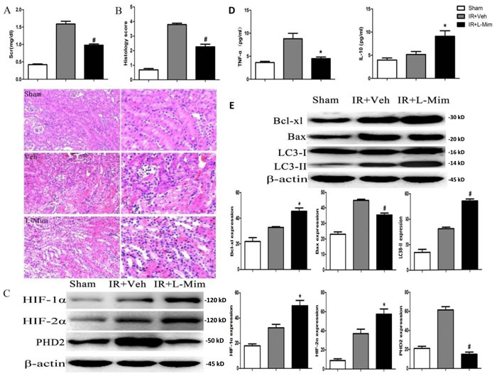 L-mimosine administration attenuates renal ischemia-reperfusion injuries.