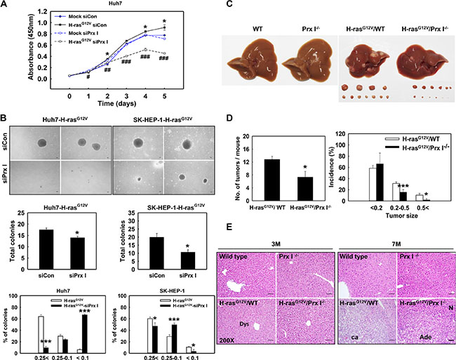 Prx I promoted Ras-induced hepatocarcinogenesis.