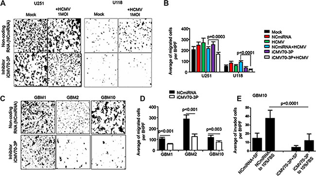 Enforced inhibition of CMV70-3P reduces migration and invasion of glioma cells.
