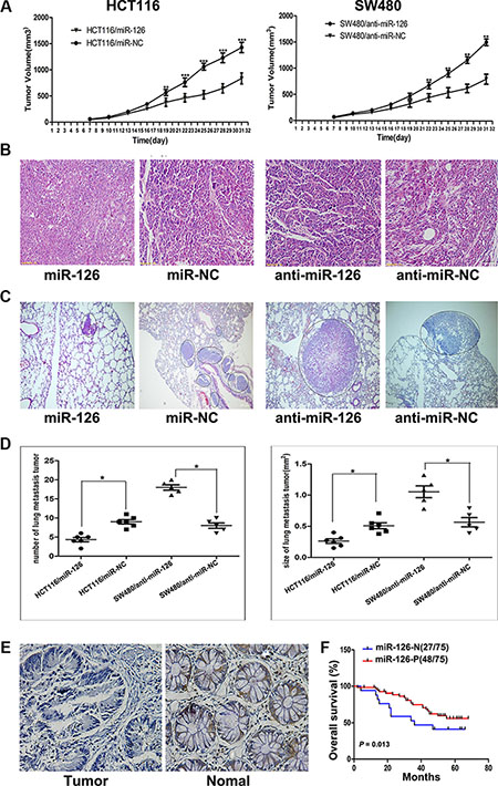 Oncotarget | MicroRNA-126 inhibits colon cancer cell proliferation