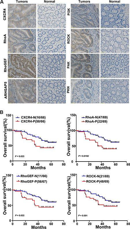 Oncotarget | MicroRNA-126 inhibits colon cancer cell