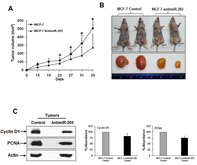 Inhibition of miR-203 in MCF-7 cells nude mice reduces tumor growth in nude mice.
