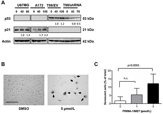 PRIMA-1MET treatment increased p21 and senescent phenotype in wtp53 MGMT-negative GBM cells.