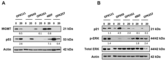 PRIMA-1MET modulated expression of wt and mutp53, MGMT, p21 and phosphorylated forms of Erk1/2 in GSCs.