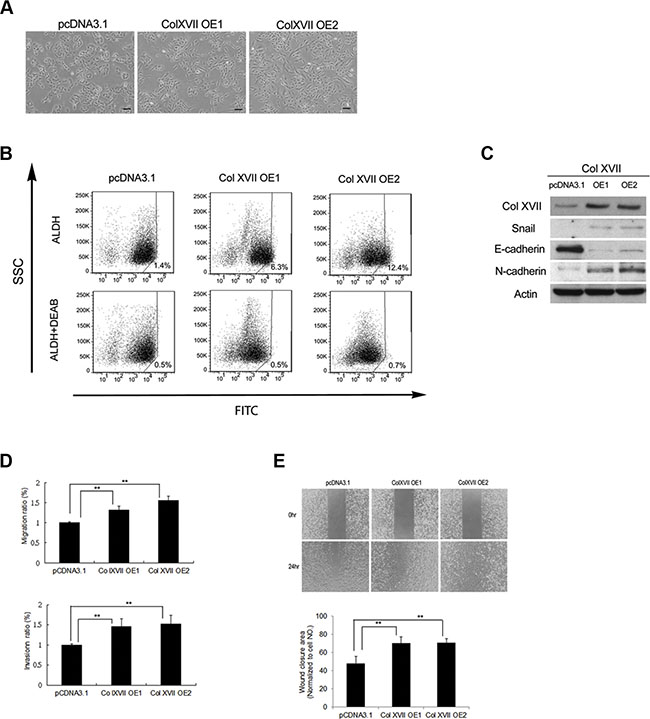 Col XVII overexpression increased CSC properties and EMT phenotypes.