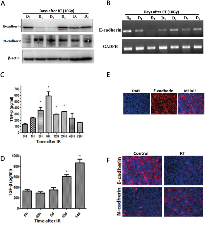 Radiotherapy induces TGF-β1 and an EMT-like phenotype.