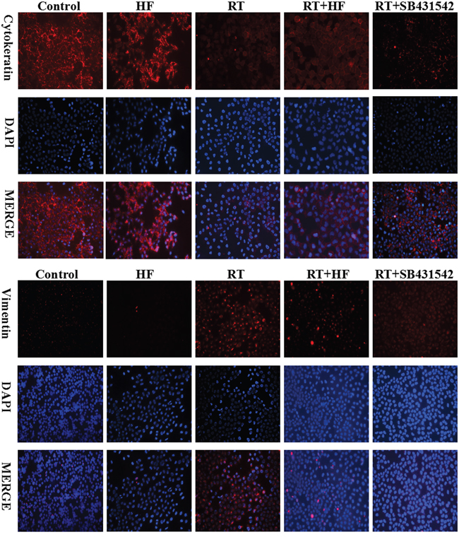 Cytokeratin and vimentin expression in LLC cells.