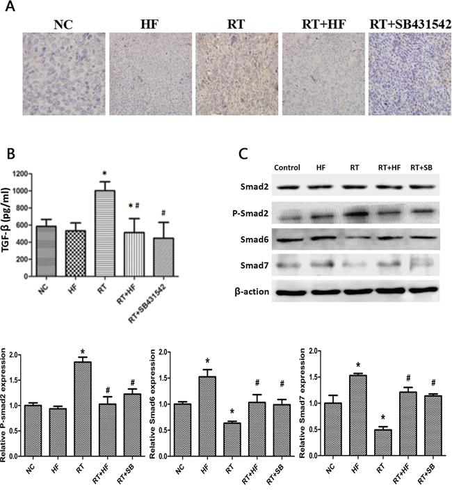 Effects of halofuginone on TGF-β1 signaling in LLC xenografts.