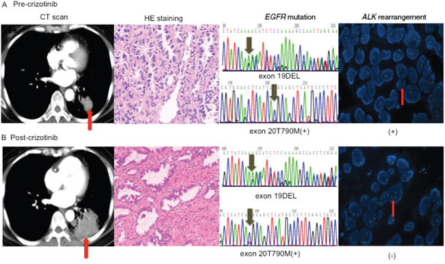 Changes of driver genes in EGFR/ALK-coexisting patient treated with crizotinib.